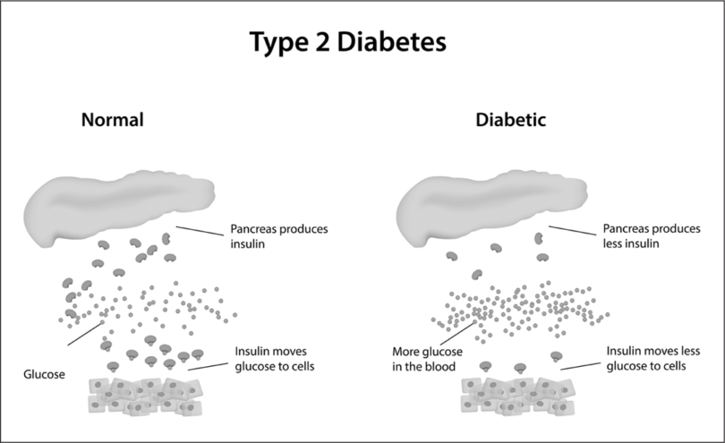Type 2 diabetes results when the pancreas does not make enough insulin to carry sufficient amounts of glucose to the blood.